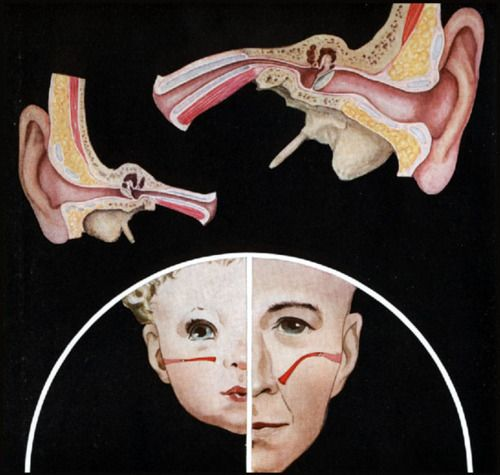Usporedba Eustahijeve cijevi i ušnog kanala kod djeteta i odrasle osobe.